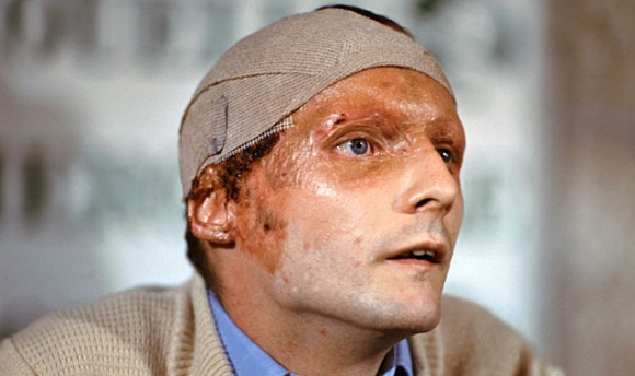 F1 driver Niki Lauda at a press conference in 1976 following his crash and subsequent burns at the German Grand Prix